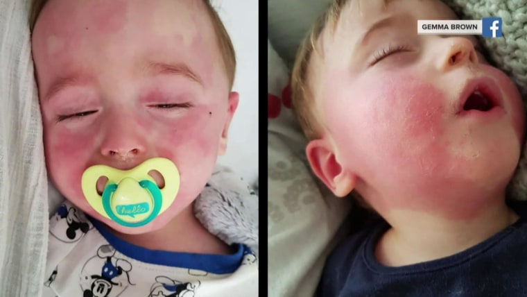 kids and coronavirus  64 reported cases of mysterious illness