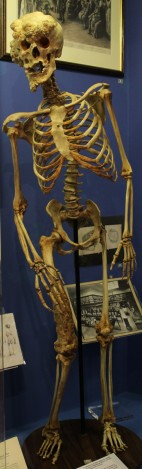 A replica of the skeleton of Joseph Merrick, known as the Elephant Man, at the Royal London Museum.
