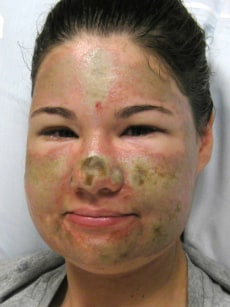 Image: Acid attack victim