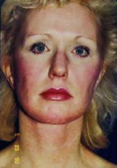 Image: 1992 fphoto of Catherine Greig