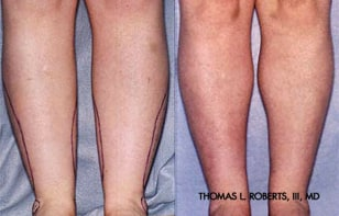 Image: cankle lipo