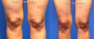 Image: knee lipo