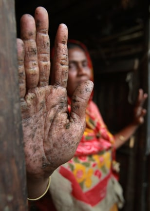 Image: Hanufa Bibi displays her palm, filled with small black warts caused by years of drinking arsenic-laced water