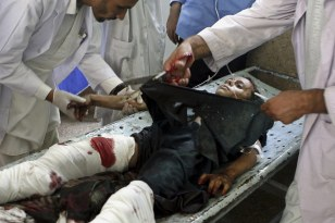 Image: Wounded Afghan boy