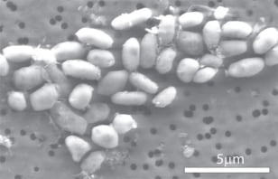 Image: Strain of the arsenic-eating bacterium called GFAJ-1