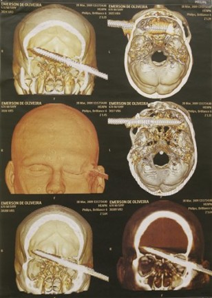 Image: CAT scan of Emerson de Oliveira Abreu