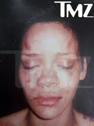 Image: Alleged photo of beaten Rihanna