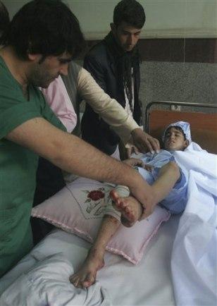 Image: Injured Afghan boy