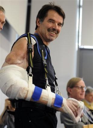 Image: Double arm transplant