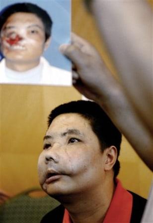 IMAGE: Face transplant patient