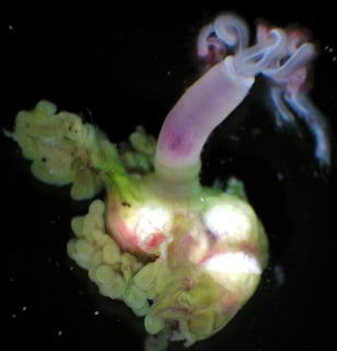 Image: Female worm