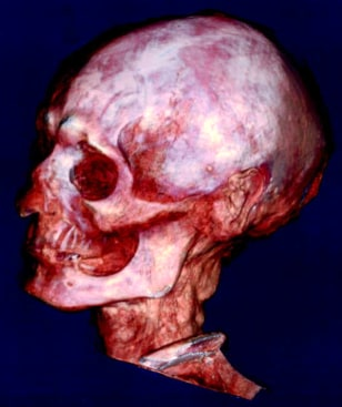 Image: Harwa's skull