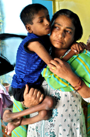 WOMAN AND HANDICAPPED SON IN BHOPAL