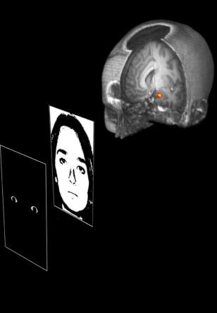 Image: Brain study