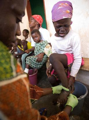 Image: Guinea worm
