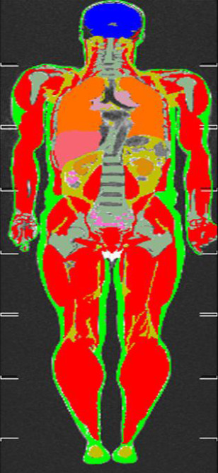 Image: MRI scan of body fat