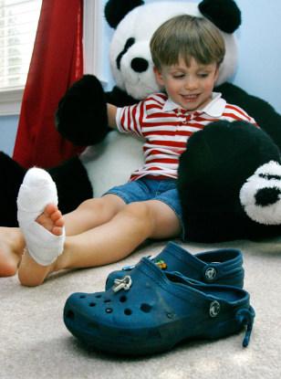 1974284eac430 Soft-soled Crocs may cause injury on escalators - Health ...