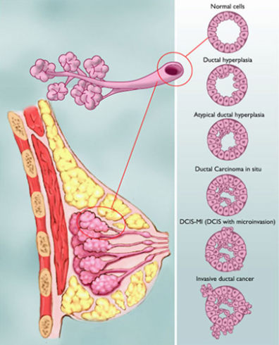 Image: Breast diagram