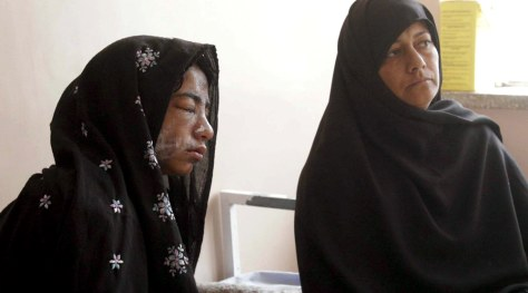 Image: An Afghan school girl, recovers in a hospital