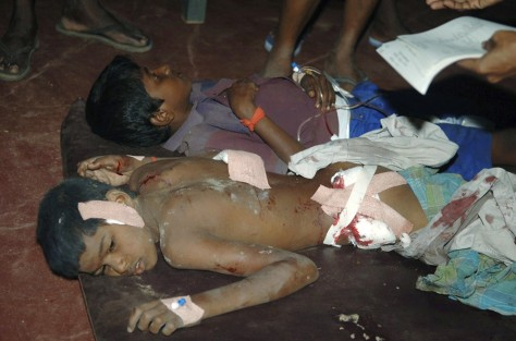 Image: Sri Lankan ethnic Tamil boys in hospital