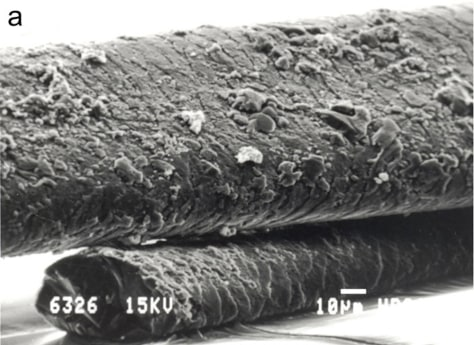 Image: Micrographs of human hairs