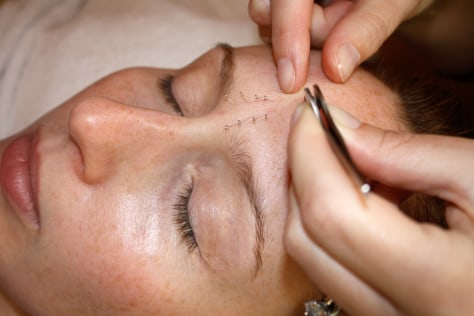 Image: Writer getting facial acupuncture