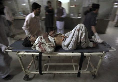 Image: Bomb victim