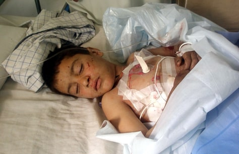 Image: An injured boy lies in the hospital
