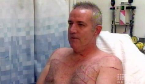 Image: Kangaroo attack victim