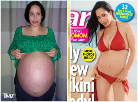 Image: Octomom before and after