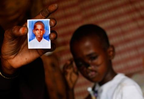 Image: Child injured in Somalia