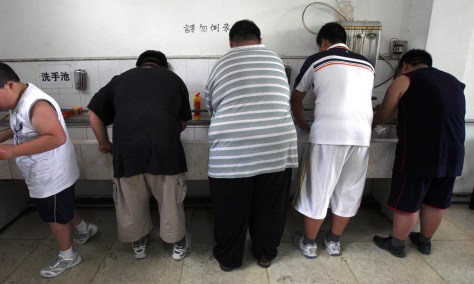 Image: obese patients in China