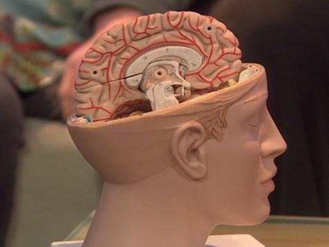 100325 Brain Model Hmed 530A