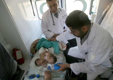 Image: Medical personnel check newborn conjoined-twin Palestinian girls Retag and Retal