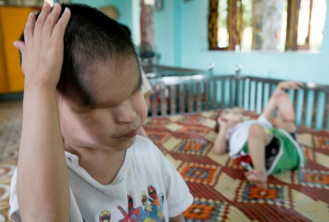 Image: Nguyen Tuan Tu, a second generation Agent Orange victim who was born without eyes