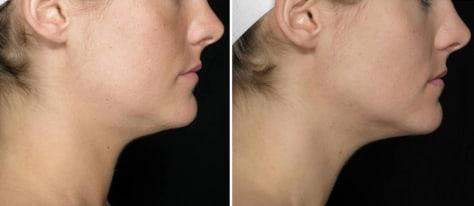 Neck fat removal drug