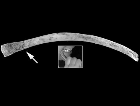 Image: Rib bone