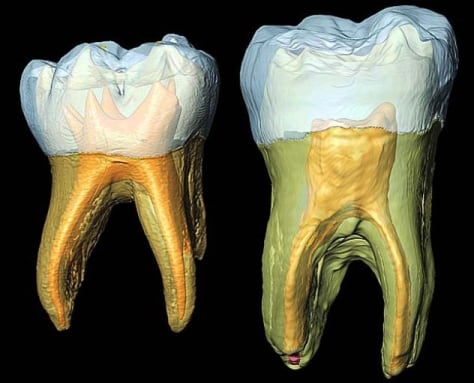Image: 3-D reconstruction of Neanderthal teeth