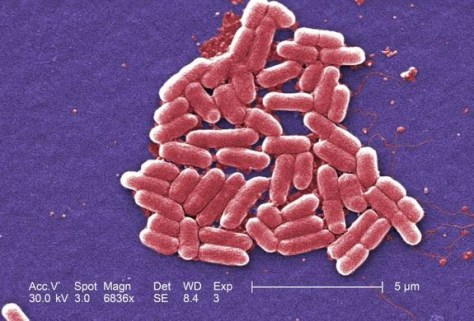 Image: Electronic micrograph shows Escherichia coli bacteria