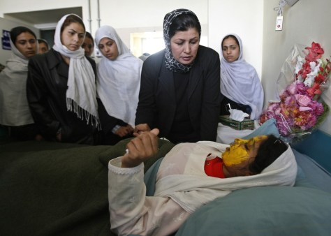 Image: Shamsia, 17, victim of an acid attack by the Taliban, is visited by her friends at a hospital in Kabul