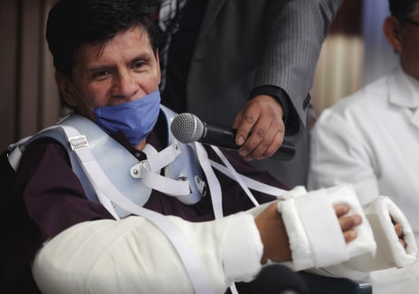 Image: Gabriel Granados Vergara, 52, speaks to the press after he received a double arm transplant at the National Institute of Medical Science and Nutrition in Mexico City, Thursday.