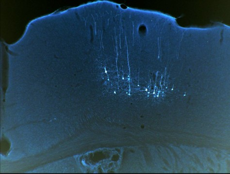 Image: Male mice motor cortex neurons