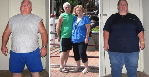 Image: Mike & Lisa Elliott before and after surgery