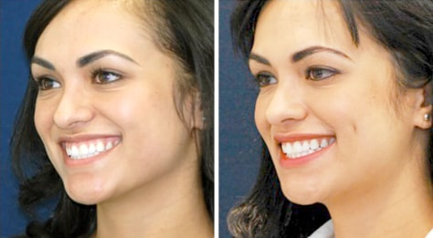 Image: Plastic surgery created dimples