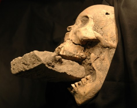 "Image: The skull of the ""vampire of Venice,"" found in a mass grave with a brick stuck in its jaw."