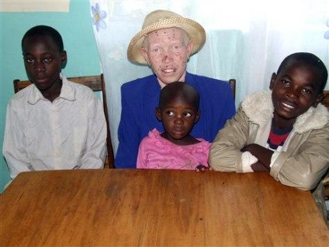 Image: Albino African woman