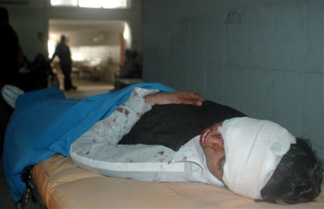 Image: Injured in Baghdad hospital