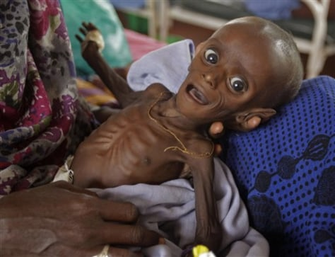 1 in 4 children malnourished, global report says - World news ...