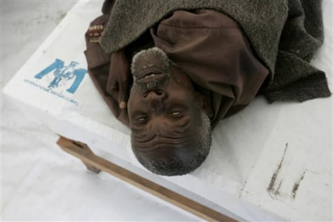 Image: Old man suffers from cholera