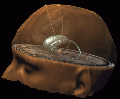 Image: Brain pacemaker